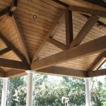 Residential patio cover lighting and fixtures.